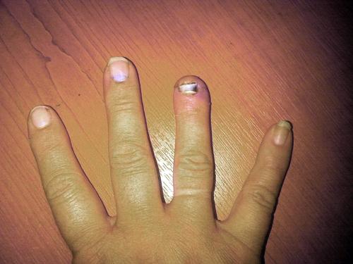 finger 3weeks